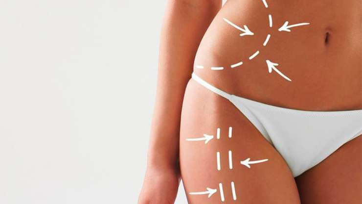 ¿Cuál es el mejor tipo de abdominoplastia? (Spanish)